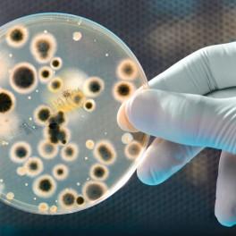Curso para la prevención y el control de la Legionellosis